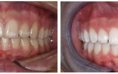 Sbiancamento Dentale Professionale …Oggi a casa