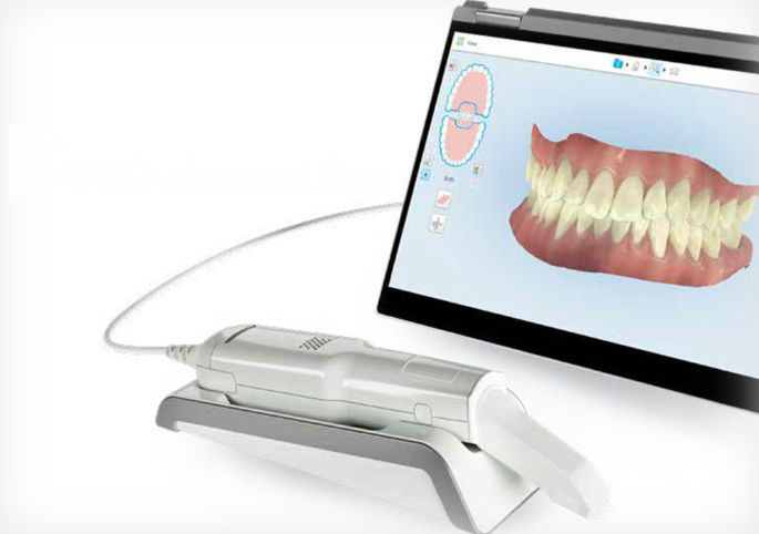 Impronta Digitale-Ortodonzia